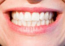 blanquer dientes