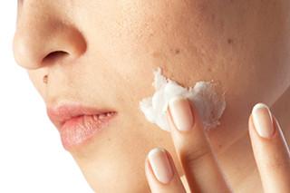 mejor crema con acido salicilico para el acne